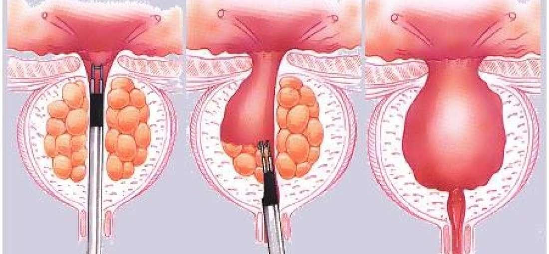 Benign Prostatic Hyperplasia Therapeutics market forecast to 2024 just  published - WhaTech